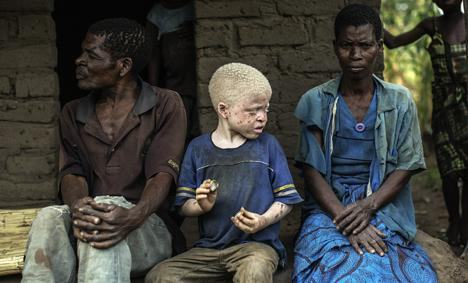 468x283_malawi-albinos-feature_002
