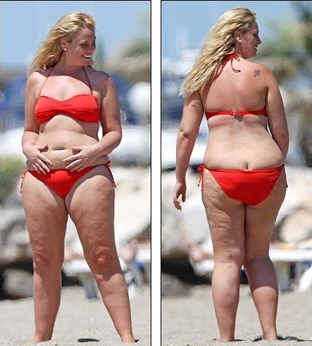 Jodie Gibson before weight loss 4.png