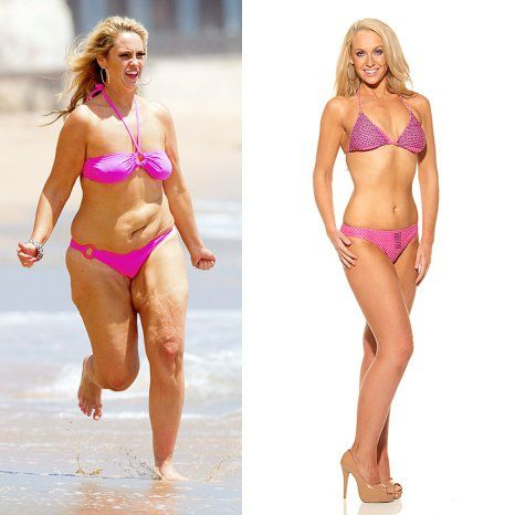 Josie gibson before after surgery reveal3.jpg