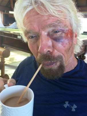 Sir Richard Branson cheats death4