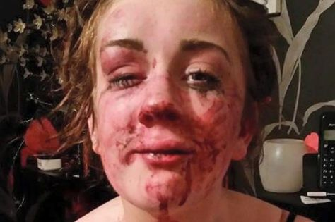 tia-shows-some-of-her-injuries-after-being-attacked-at-a-house-party-in-abergele1