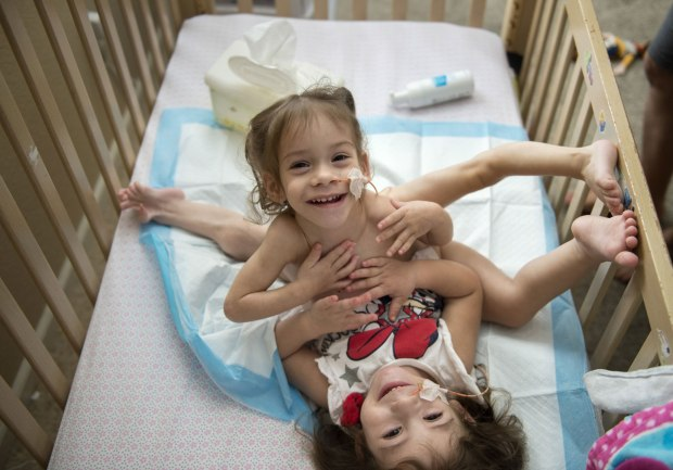 Eva and Erika were attached from the sternum to the pelvis and shared several internal organs.jpg